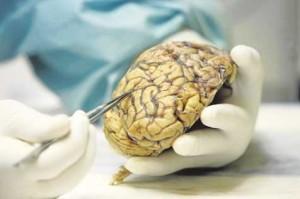 Cerebros que resisten el Alzeimer