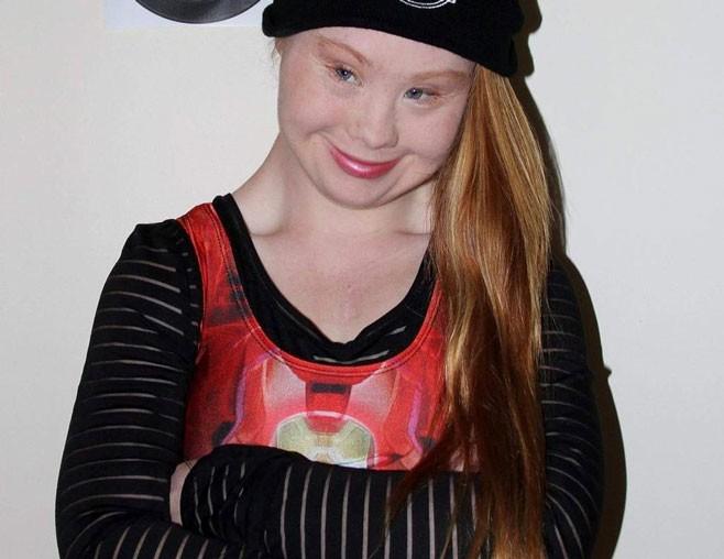 """Madeline """"Maddy"""" Stuart tiene síndrome de Down y 18 años de edad, a pesar de las limitaciones decidió convertirse en modelo publicitaria."""